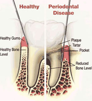 infammed gums could be sign of periodontal (gum) disease